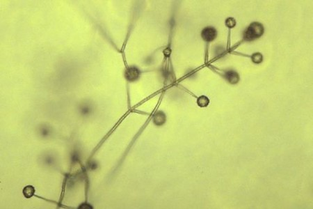 Marchitez por verticillium (Verticillium dahliae) - Fiálides de Verticillium sp./Créditos: http://www.apsnet.org/